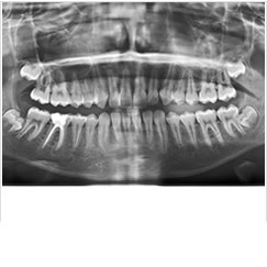 Oral Diagnoz ve Radyoloji