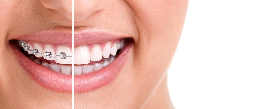 Ortodonti Diş