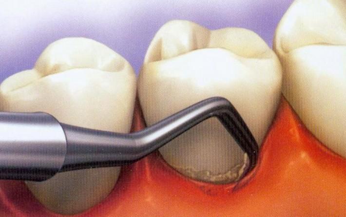 Periodontoloji – Dişeti hastalıkları