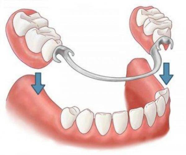 Protez - Estetik Diş Hekimliği