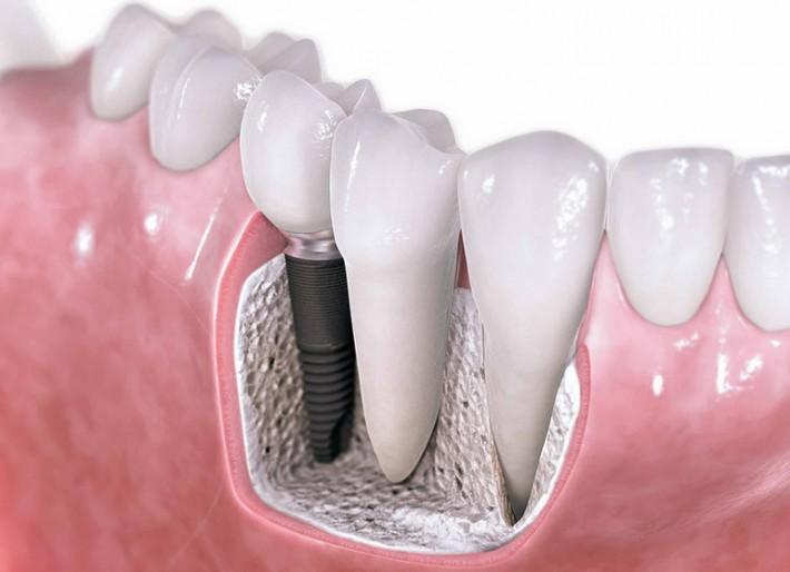 implant-vidasi