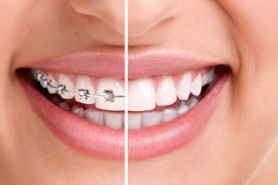ortodonti-1-14