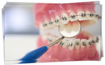Ortodonti Tedavi Yöntemleri