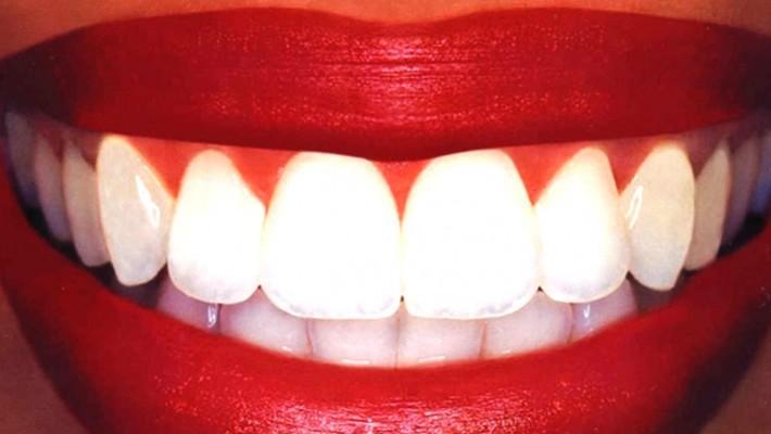 Diş Beyazlatma (Bleaching) Tedavisi