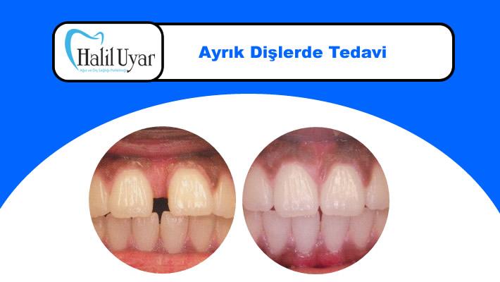 Ayrık Diş Tedavisi