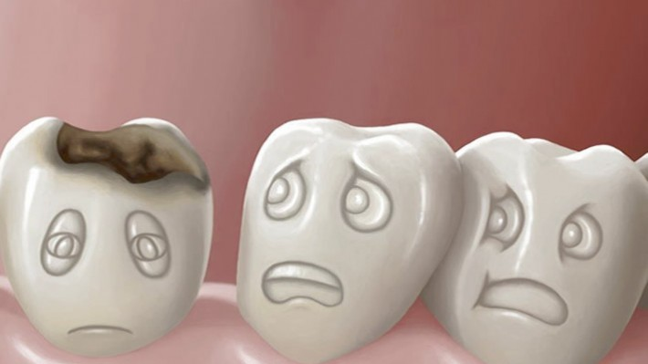 Diş Çürüklerinden Korunma Yöntemleri