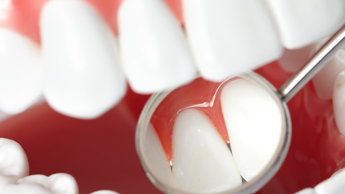 Diş Estetiği Yöntemleri