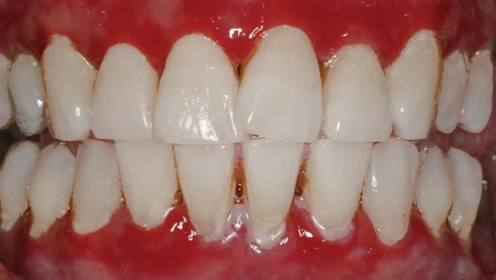 Diş Eti Kanaması ve Tedavisi