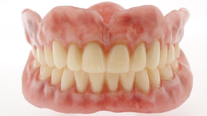 Takma Diş Nedir?