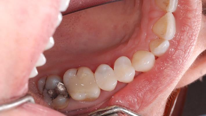 Diş Dolguları Hangi Durumlarda Değiştirilmeli?
