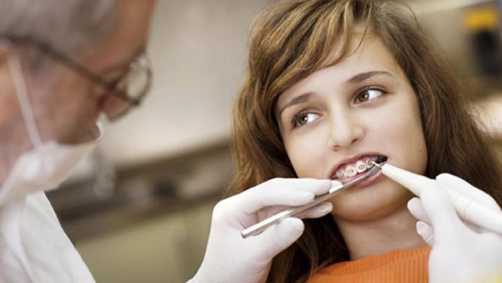 Diş teli çürüğe yol açar mı?