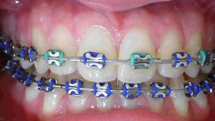 Diş Teli Ne Kadar Süre Kullanılmalı?