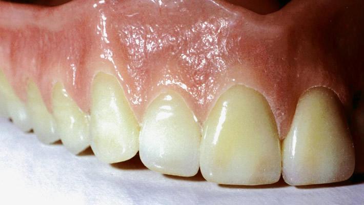 Dişteki Renk Değişiklikleri Nasıl Düzeltilir?