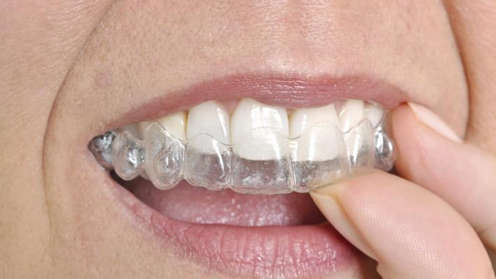 Yetişkinler İçin Estetik Diş Telleri