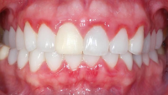 Diş Eti İltihabının Belirtileri Nelerdir?
