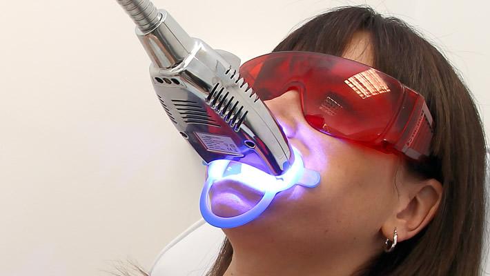 Lazerle Diş Beyazlatmak Zararlı mı?