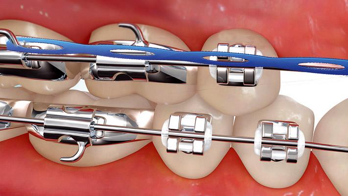 Diş Braketi Çeşitleri