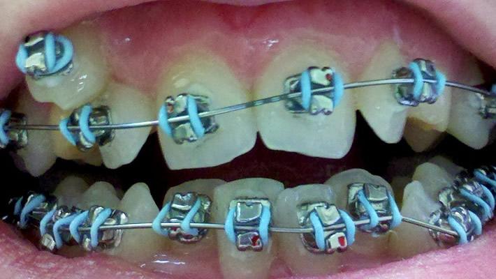 Diş Braketinin Sallanması Durumu