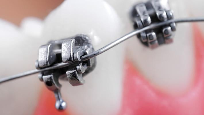 Metal Diş Teli